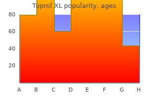 order toprol xl with amex