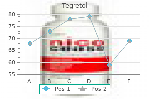 buy 100mg tegretol with mastercard