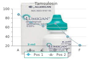 generic tamsulosin 0.2 mg without a prescription