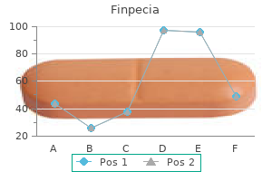 effective finpecia 1 mg